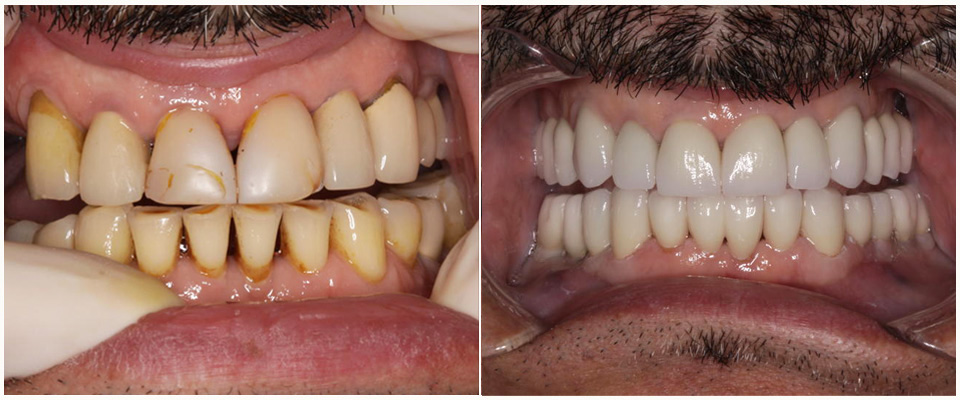 protesis dental caso  antes despues, coronas dentales porcelana casos antes despues, reconstruccion dental antes despues