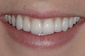 carillas dental porcelana estetica medellin despues