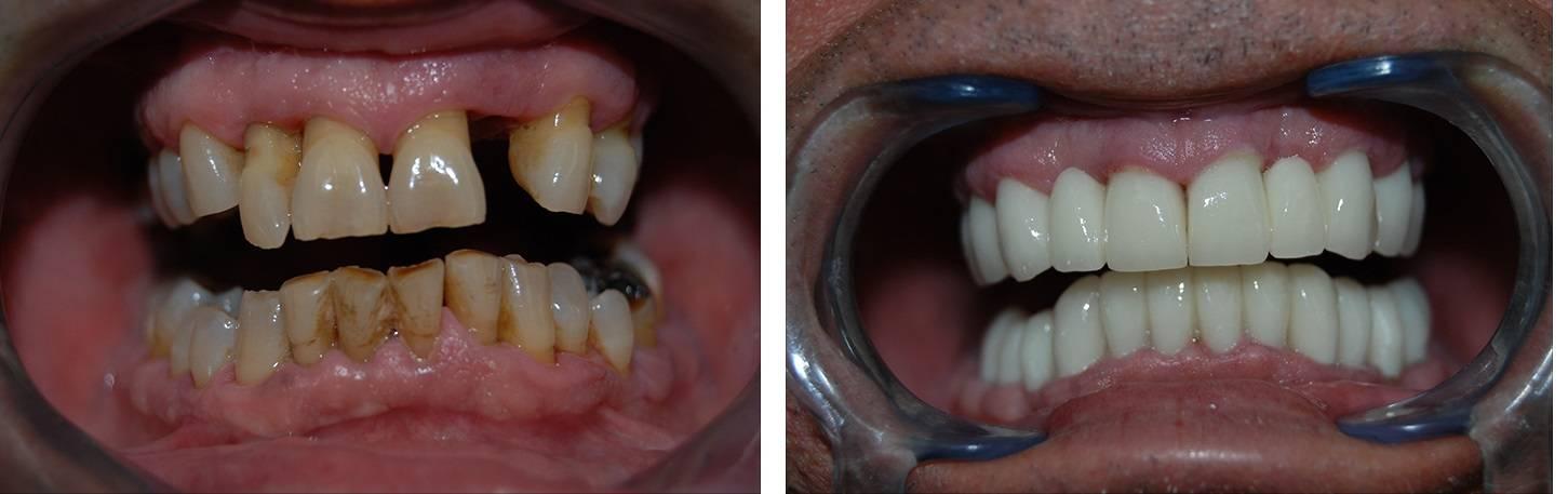 Puentes Dentales Tipos de puente dental fijo