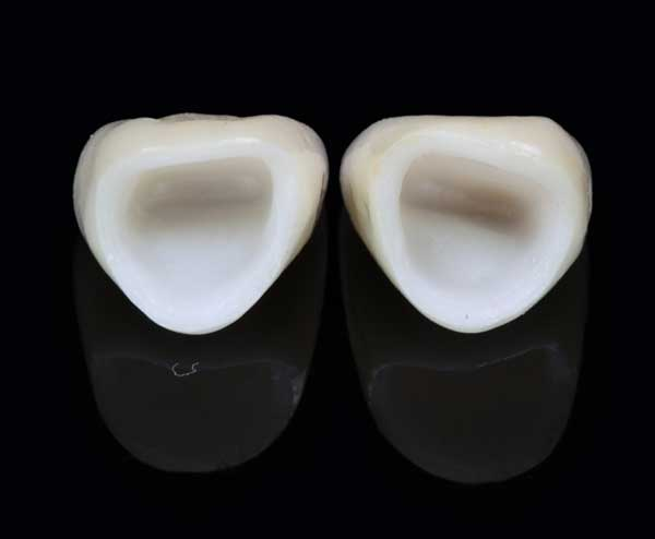 corona dental circonio porcelana