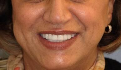 Diseno-de-sonrisa-medellin-caso-antes-despues