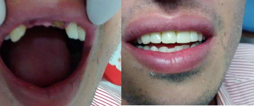 Tipos de puente dental