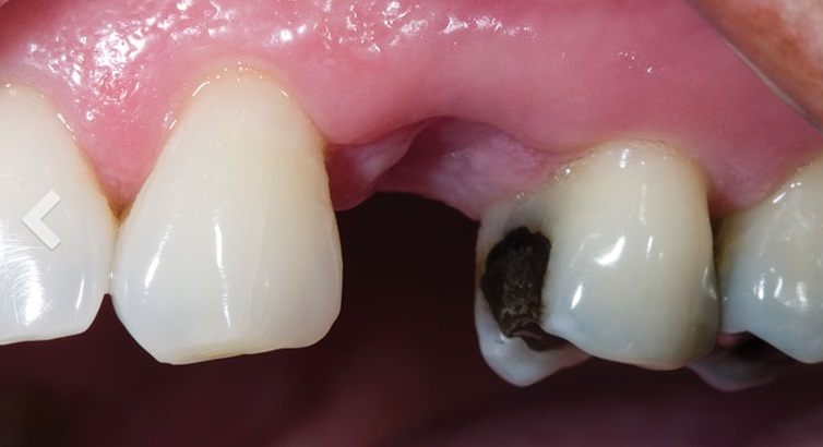 puente-dental-fijo-zirconio