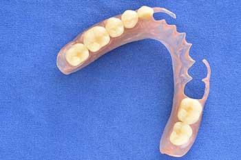 Puente dental removible flexible