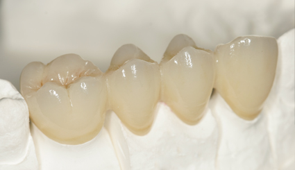 Puente dental porcelana fijo