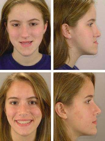 Ortodoncia antes después Medellin
