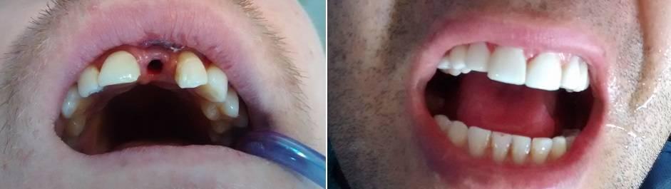 Implante Dental antes después Medellín
