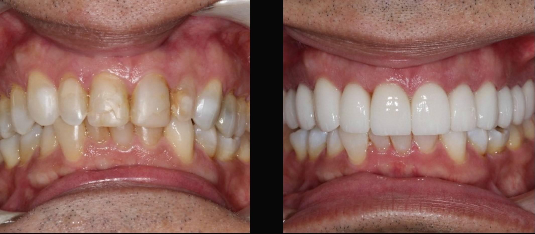 Carillas Dentales antes y después