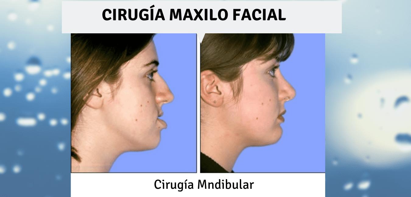 Cirugía maxilo facial Medellin