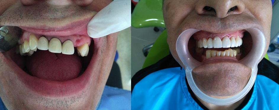 Coronas dentales circonio porcelana antes después