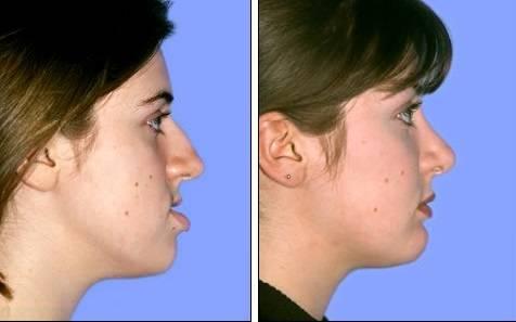 Cirugia maxilofacial -antes - después Medellin