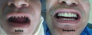 dentist Medellin Colombia