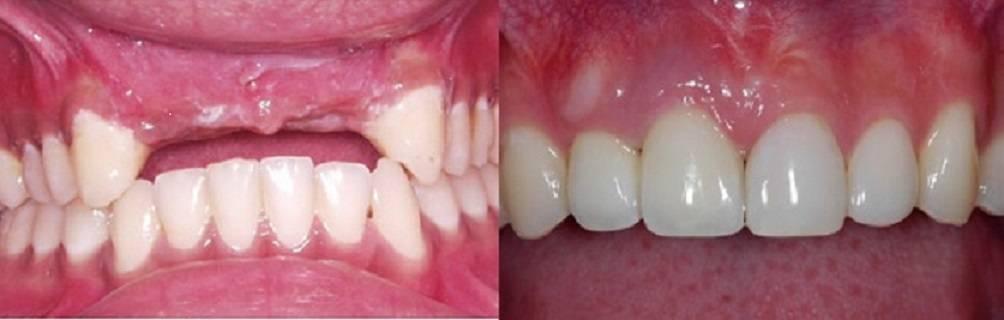 Implantes dentales Medellin Colombia caso antes - despues