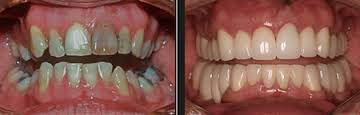 Dental reconstruction before after Medellin Colombia