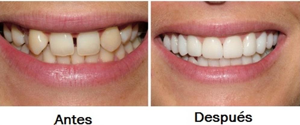 Fotos Diseño de sonrisa antes y después Medellín
