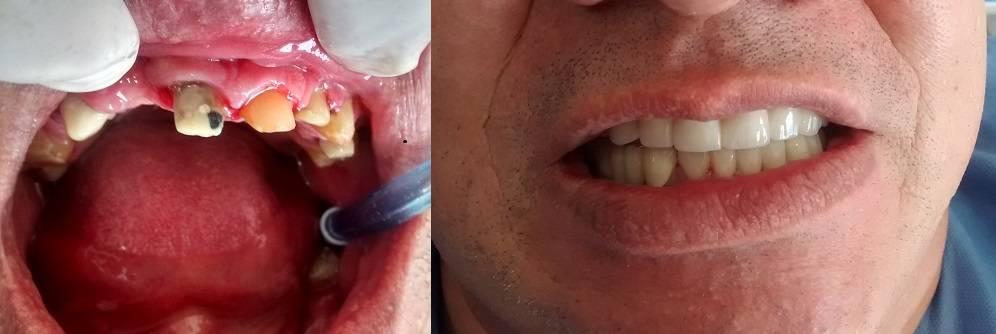 Puente-dental antes después Medellín